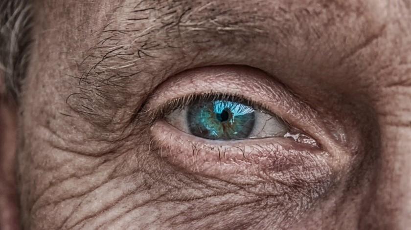 El Dr. Guillermo Moraila Moya, Director del Centro Dermatológico de Sinaloa, informó que el cáncer de piel y se presenta más en personas mayores.(Pixabay.)
