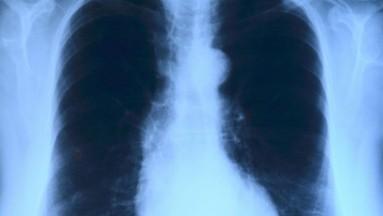 Recuperan pulmones humanos al conectarlos al sistema circulatorio de un cerdo