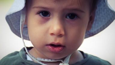 Estos 4 síndromes pueden provocar Epilepsia Refractaria en menores de 3 años