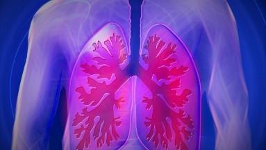 5 alimentos que te ayudarán a mejorar la salud de tus pulmones