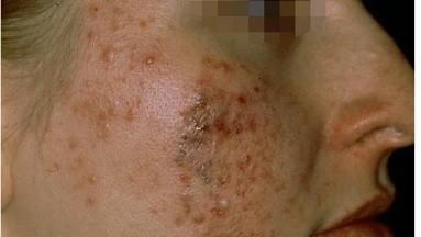 Si su acné solo aparece en la frente y las sienes, los productos para el cuidado del cabello pueden ser los culpables.