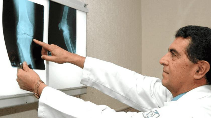 La osteoporosis puede presentarse por diversos factores de riesgo como el consumo excesivo de alcohol y el tabaco.(Archivo GH)