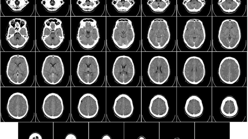 """""""Nos alienta la designación de dispositivo innovador de la FDA para Stride Plus, que respalda nuestros esfuerzos por elevar el nivel de atención para el accidente cerebrovascular crónico"""".(Pixabay.)"""