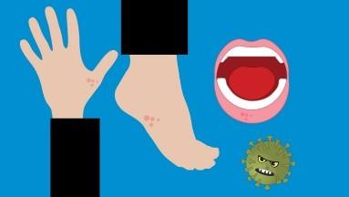 La enfermedad de manos, pies y boca es una afección común que se transmite de persona a persona, es común en los niños menores de cinco años, pero cualquier persona puede contraerla.