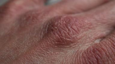 Por eso es importante tomar en cuenta algunos consejos para evitar que la piel sufra sobre todo si tiene esta condición de resequedad.